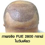 FUE01