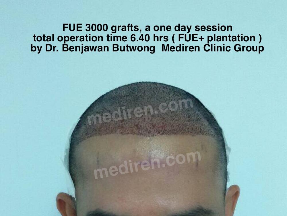 ์FUE 3000 grafts