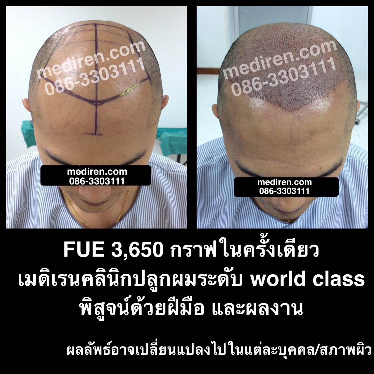 FUE-3650 Graft