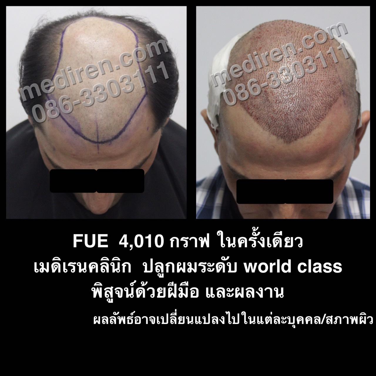 FUE-4010 Graft