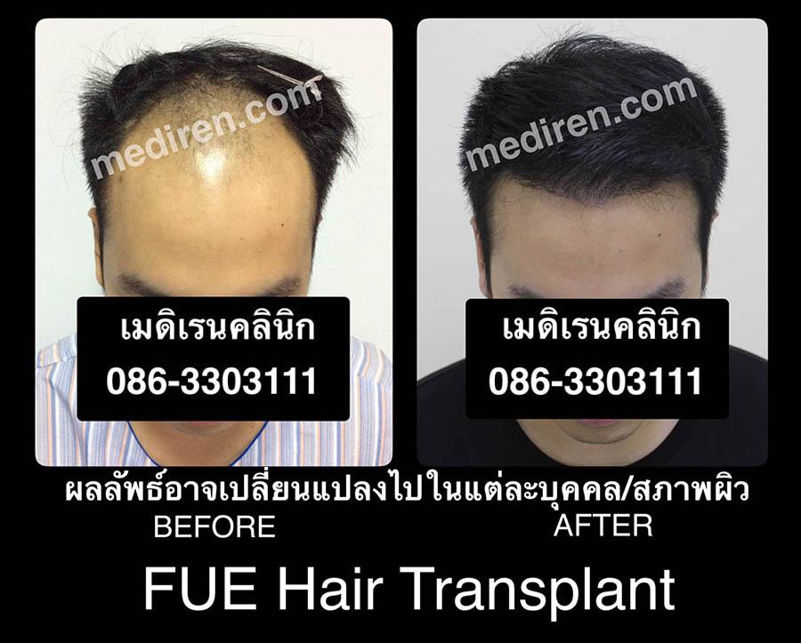 FUE-Hair-Transplant